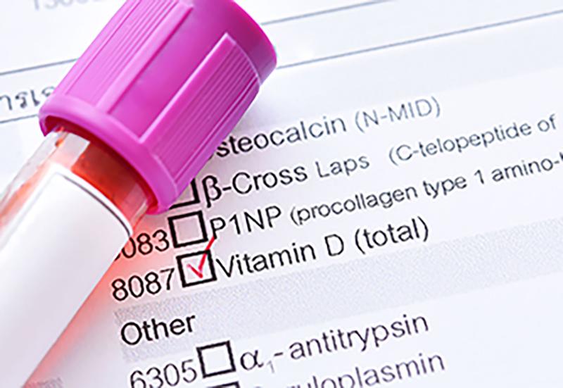 ¿Deficiencia o no deficiencia? Determinar los niveles de vitaminas con pruebas domésticas de nutrientes.