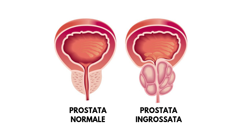 modi naturali per ridurre la prostata ingrossata