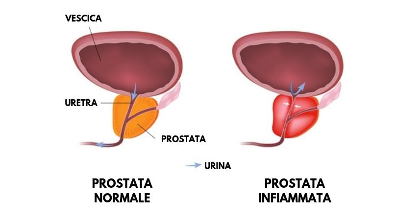 prostatite flusso minzione prostatite cronica e