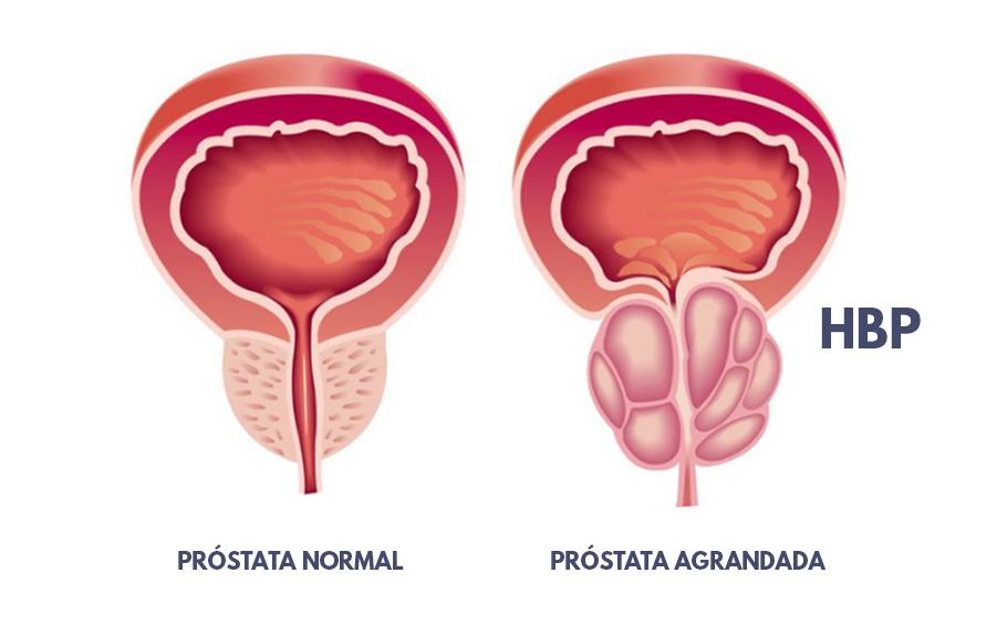 Ki a hírességektől a prostatitis betegsége