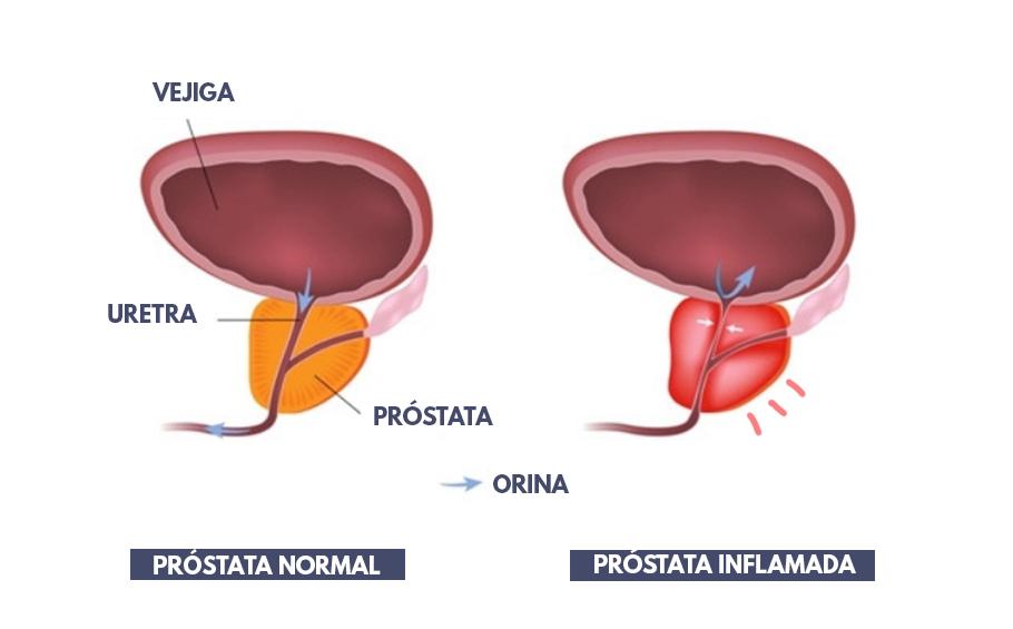Novir Prostatitis Vélemények)